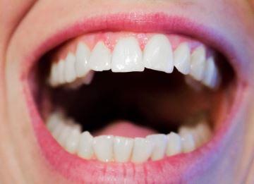 fauliger-mundgeruch-trockener-mund