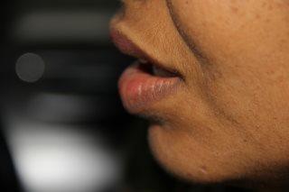 Mundgeruch - Foetor ex ore oder Halitosis